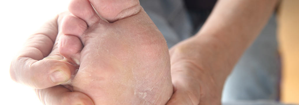 A man checks the dry peeling skin of his athletes foot fungus between his toes.