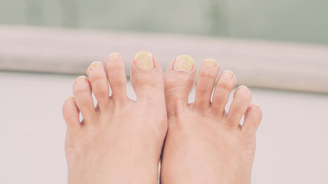 yellow-nails-blog