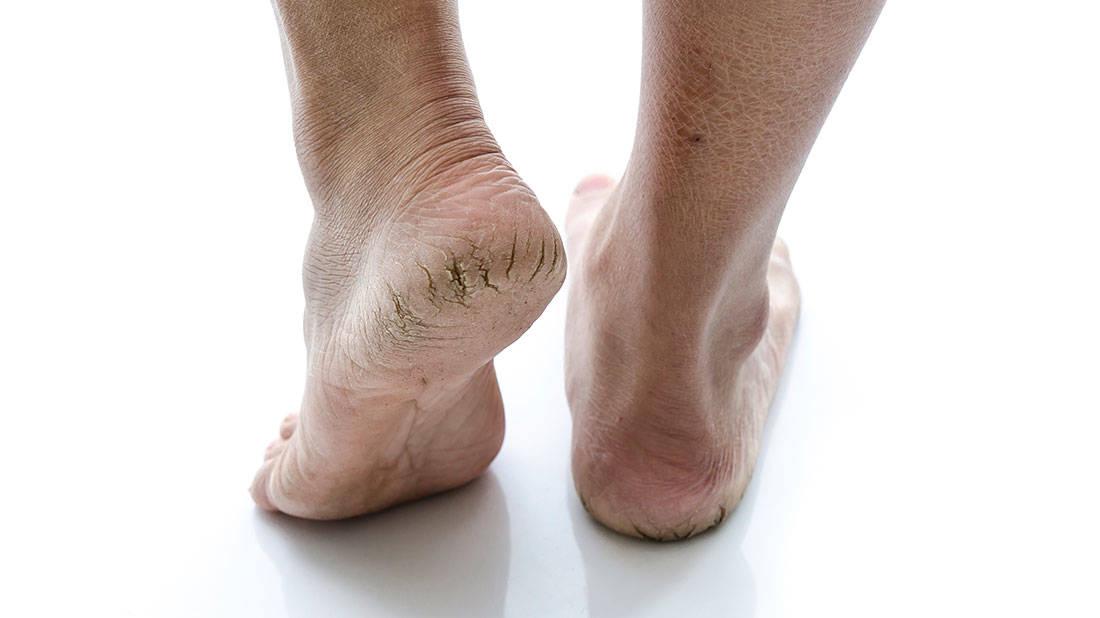 Dry, Cracked Feet
